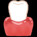 歯茎が腫れる原因や対処法 痛みを和らげるには?