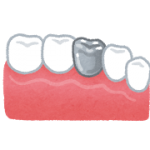 銀歯が臭い原因や対策は?改善する5つの方法